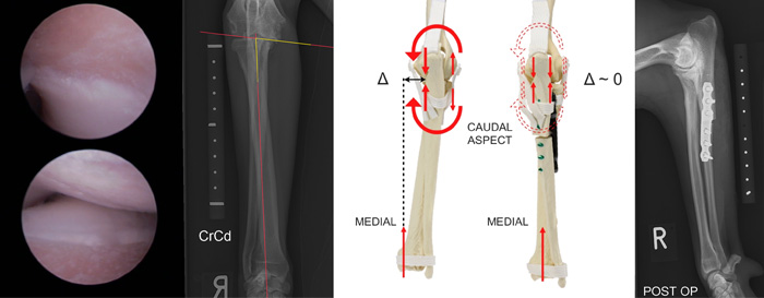 PAUL - Proximal Abducting Ulnar Osteotomy