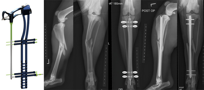 TIbial fracture repair stabilized with a BioMedtrix iLOC interlocking nail via a minimally invasive approach