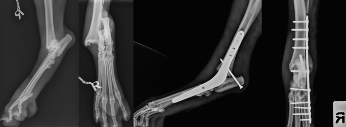 Pantarsal arthrodesis due to talocrural disruption / talar fracture