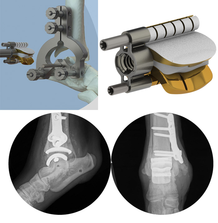 TATE Technology - Total Ankle Replacement